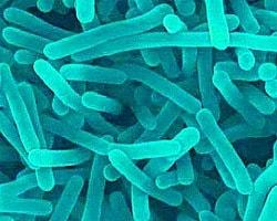 Listeria_monocytogenes_actividad_de_agua_labferrer
